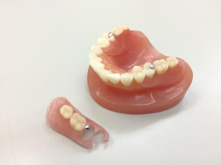 当院がおすすめする入れ歯